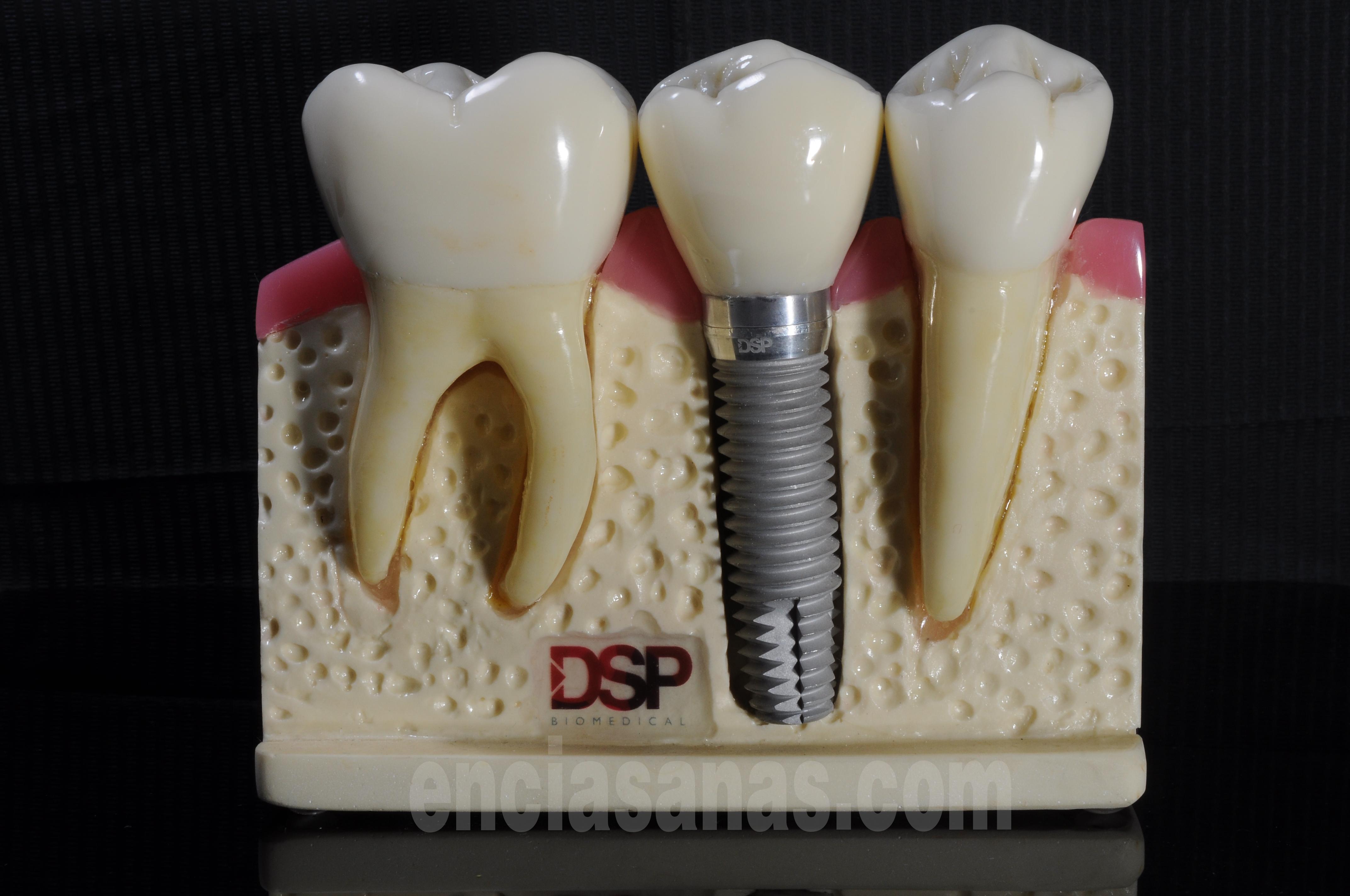 Vista vestibular en maqueta de implantes dentales