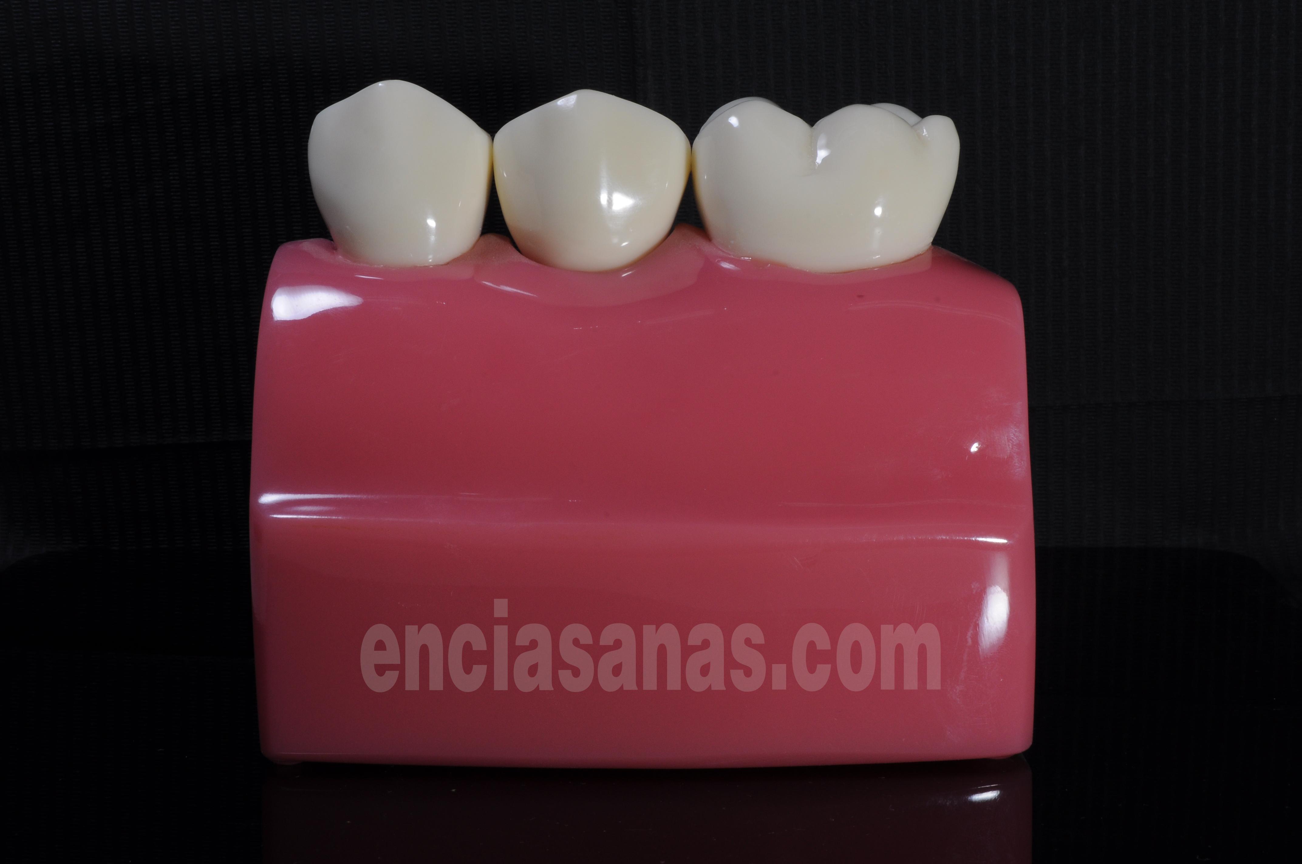 esquema de implantes dentales